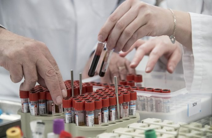 Staff members of the Barrand laboratory sort blood samples for COVID-19 serological tests in Colmar, eastern France, on April 14, 2020, during the 29th day of a strict lockdown in France aimed at curbing the spread of the COVID-19 disease caused by the novel coronavirus. (Photo by SEBASTIEN BOZON / AFP)